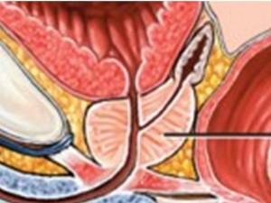 Prostat (5)