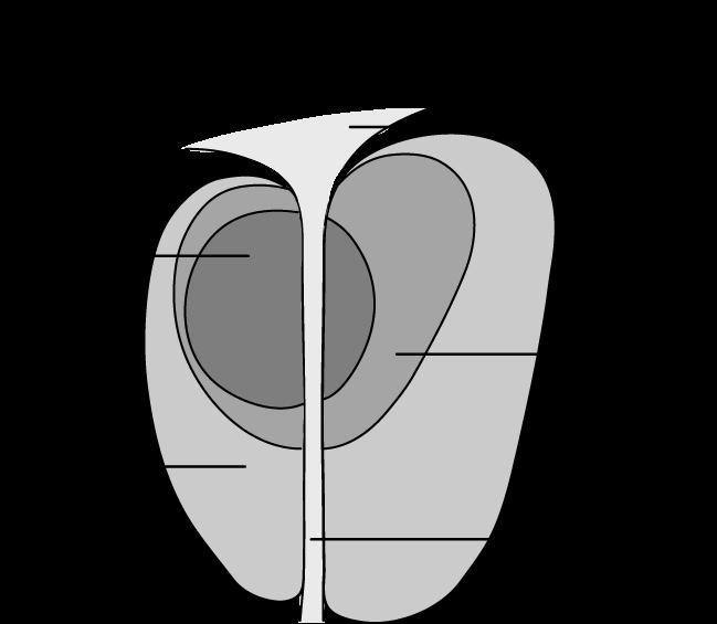 ProstateZones